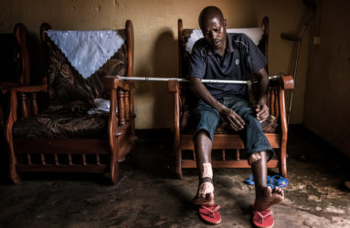 "Egide, 36, lives in Nyakabiga, a neighborhood of Bujumbura. He is part of the MSD opposition party in Burundi and he was leading a group during the protest in May 2015 against the 3rd term of President Nkurunziza. He says he was shot three times in the legs by the police on October 28, as a consequence of his political actions. Today, he says he has ""nothing to hide!""."